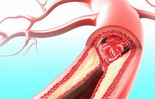 Приложение расскажет о заболеваниях сердца и сосудов без разрезов и уколов