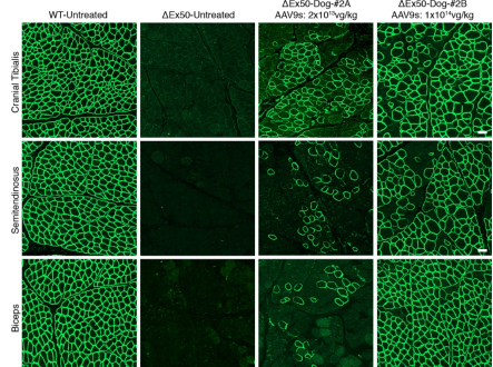 С помощью редактора генома CRISPR удалось вылечить мышечную дистрофию