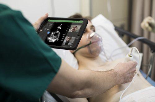 Philips Lumify превращает смартфон или планшет в прибор для медицинской ультразвуковой диагностики