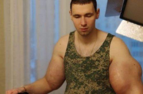 Это не синтол: Врачи рассказали, что выкачали из рук Кирилла Терешина и рассказали, сколько операций у парня впереди