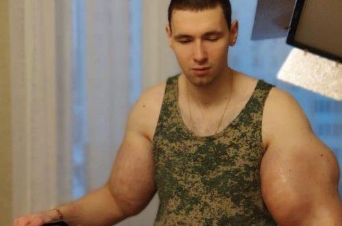 """Мама кормит с ложечки: """"Руки-базуки"""" провёл операцию по удалению бицепсов и потерял возможность двигать руками"""
