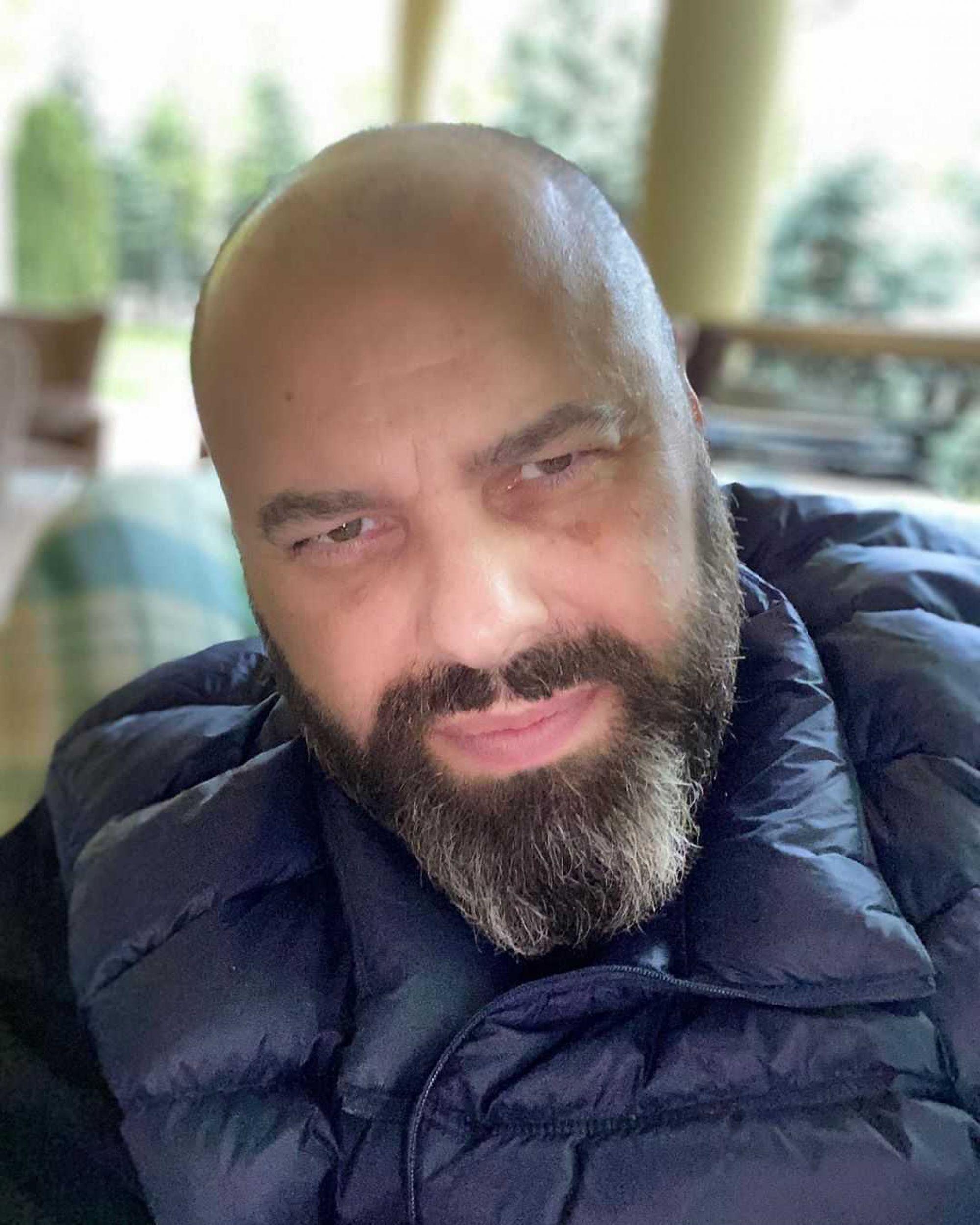 Максим Фадеев показал свою архивную фотографию с длинными волосами